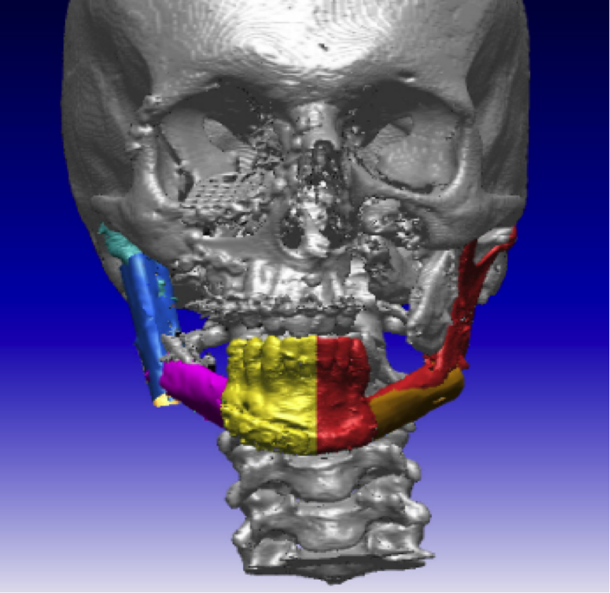 3D Medical Technology - Implantations in the Treatment of Firearm Injuries